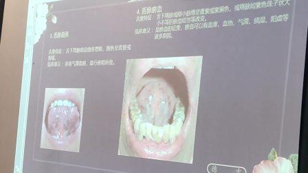 全息舌诊-舌脉诊断:前列腺、子宫肌瘤、痛风等