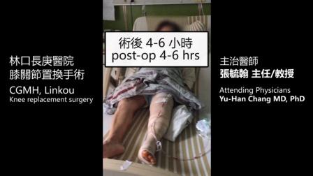 林口长庚医院-膝关节置换手术 (术后4-6小时)