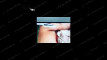 爱剪辑-明星针灸双眼皮