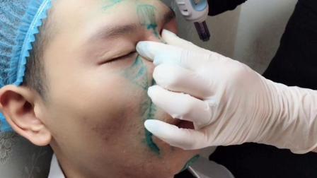 玄咨策划——无针微整丰鼻根,鼻背纹手法