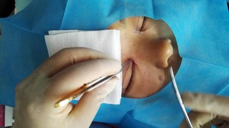 4开内眼角手术之剥离