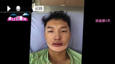谢明吉医师|三维美形正颌手术|改善倒咬|3个月恢复纪录
