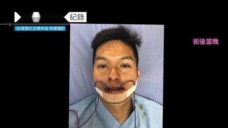 姜厚任医师|3D客制化正颚手术|改善戽斗脸型|3个月恢复纪录