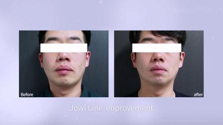 丽肤特拉自拍广告 LIFTERA selfie commercial