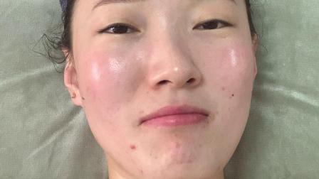 脸部护理全套