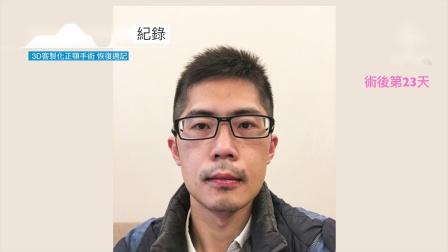 三维美形正颌手术|改善下颌后缩脸型、睡眠呼吸暂停|1个月恢复纪