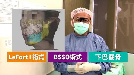 【风华短放送】谢明吉医师|直击正颌手术房