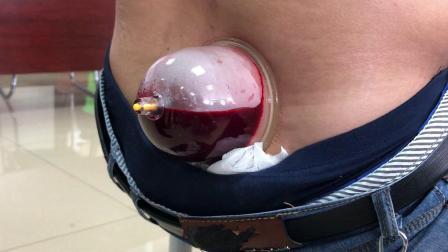 刺血疗法手法