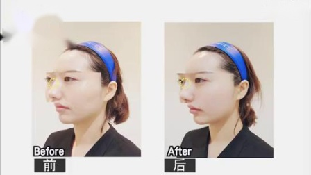 TATOA - 鼻子玻尿酸(0.5cc量的变化)