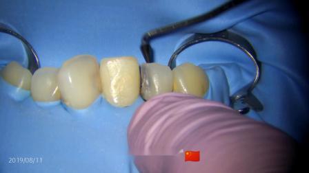 前牙多颗上橡皮障选择障布优先法,显微镜下录制视频