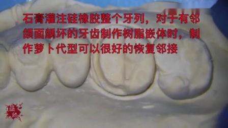对于邻合面龋坏的牙齿,制作树脂嵌体时,制作萝卜代型可以很好的恢复邻接……
