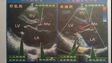 32.心脏超声中级职称看图考题(曹雁)