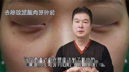 眼底玻尿酸肉芽肿去除与修复方法