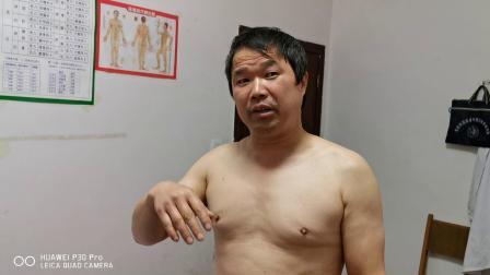 胡升猛运用高月神经敏化针治疗潘先生颈肩痛视频
