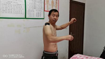 胡升猛运用高月神经敏化针治疗邓学书肩周炎视频