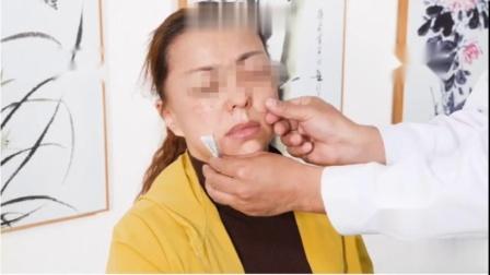 邱飞虎(鬼门十三针)治疗各类鼻炎.mp4