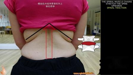 SPS螺旋肌肉链椎间盘突出的治疗理论椎间盘突出的保守治疗.mp4
