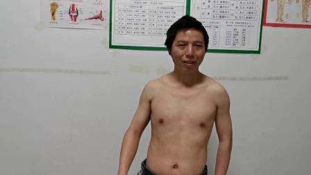 胡升猛运用高月神经敏化针治疗曾祥燕先生颈肩综合征视频