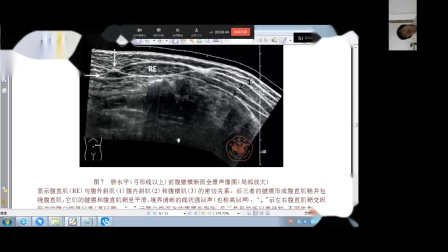 20200330业务学习2(子宫圆韧带囊肿及腹直肌鞘血肿)