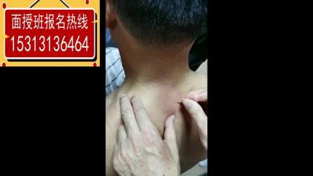 张德祥老师治疗多年颈椎病_0