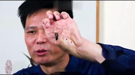 王纪强·道象针法——过敏性鼻炎,咽炎.mp4