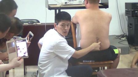 张振听零力度正骨-腰椎间盘突出的诊断以及治疗