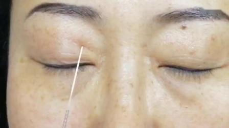 张秀春针灸治疗眼睛疾病手法实操演示教学视频_高清