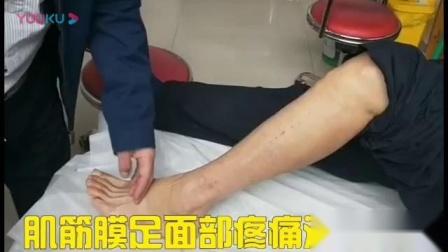针灸筋膜松解手法治疗足面脚背疼痛_标清