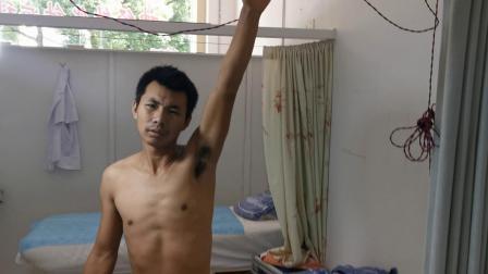 胡升猛运用高月神经敏化针治疗杨建宾先生肩周炎视频