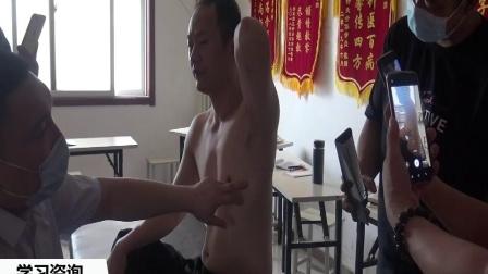 肌筋膜松解术2