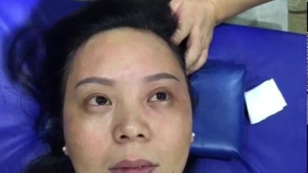 王红锦-徒手整形:面部美容调整大小眼