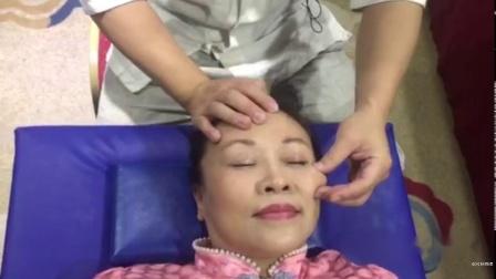 王红锦 调整大小眼、开眼角全脸提升、收颧骨瘦颌骨咬肌 (6)