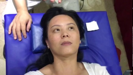 王红锦大小眼、开眼角,全脸提升、收颧骨,瘦颌骨、咬肌 (7)
