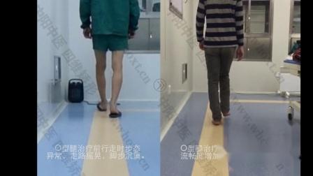 武汉中阳中医院O型腿矫正怎么样