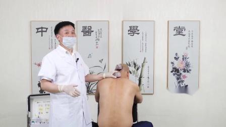 王合民中医放血疗法教学-大椎穴刺血