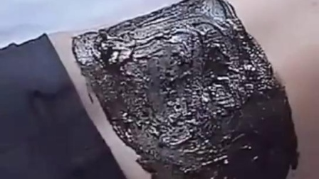 酸碱平草本深吸泥疗膏的用法