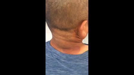 聚医康-韩氏骨诊绝技-疼痛前和一次调理后-患者反馈