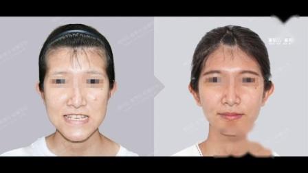 三维美形正颌手术