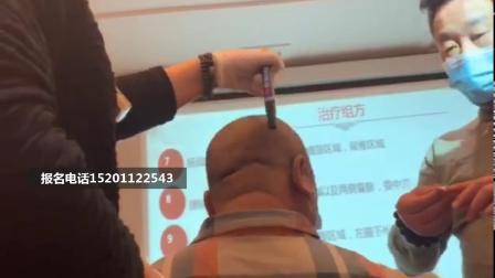 中医王阿萍刺络放血挑羊毛疔班针灸治疗调理腰痛针法