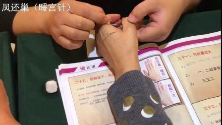 针灸培训内部视频资料--凤还巢(暖宫针)治疗宫寒、不孕症