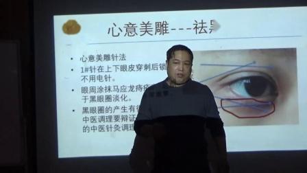 中医针灸美容-刘涛心意美雕-祛除黑眼圈和眼袋视频