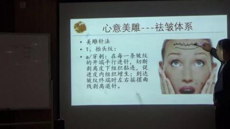 中医针灸美容-刘涛心意美雕-抬头纹祛皱针法视频