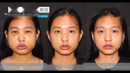 我的恢复周记- 2020-07月-08月|三维美形正颌手术|1个月回诊纪录