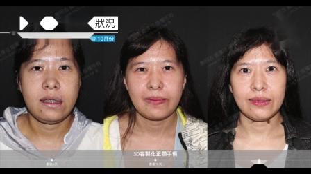 我的恢复周记- 2020-09月-10月|三维美形正颌手术|1个月回诊纪录