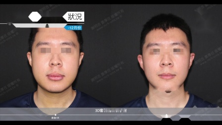 我的恢复周记- 2020-11月-12月|三维美形正颌手术|1个月回诊纪录