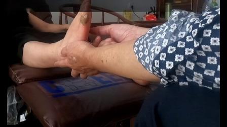 胆囊切除前被救患者三个月复诊(1).