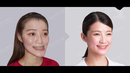 谢明吉医师 三维美形颧骨削骨手术+三维美形正颌手术