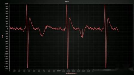 心电图(ECG)