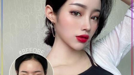 韩国DA、双眼皮、鼻综合、脂肪填充