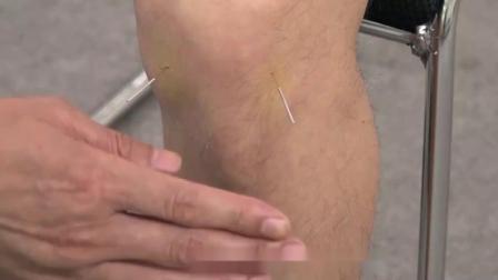 王纪强治疗膝关节半月板卡压